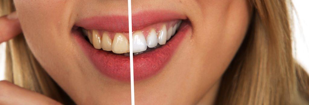 jablčný ocot-zuby