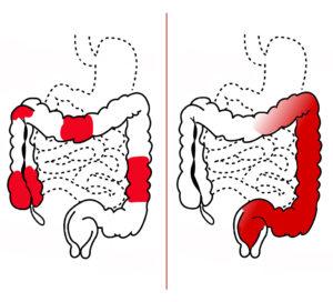 Crohnova choroba - Ulcerozna kolitida