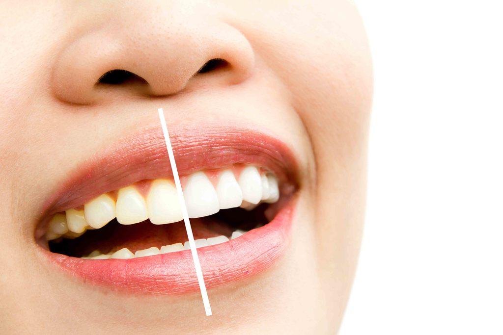 bielenie zubov uhlím